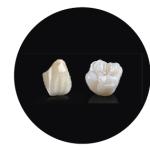 Coronas sobre dientes naturale