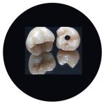 zirconio sobreimplantes
